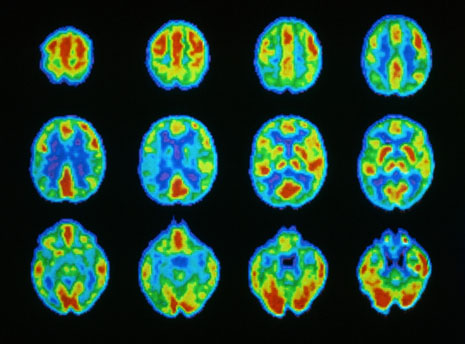 November 1981 --- Color-coded results of a brain scan made while the patient was thinking, from a positron emission tomography scanner
